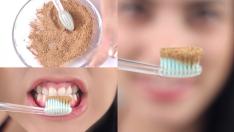 Evde Diş Beyazlatma Yöntemleri