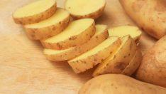 Patatesle Hamam Böceği İlacı Yapma