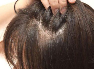 Saç Aralarında Çıkan Acı Veren Sivilcelere 5 Doğal Çözüm