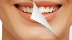 Diş Sağlığı İçin Tüketilmesi Gereken Gıdalar