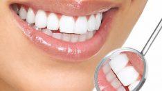 Pratik Bilgiler Diş Beyazlatma Yöntemleri