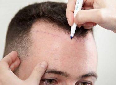 Saç Ekimi Nedir, Nasıl Yapılır, Zararı Var mıdır?