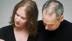 Aşırı Saç Dökülmesinin Nedenleri ve Tedavisi