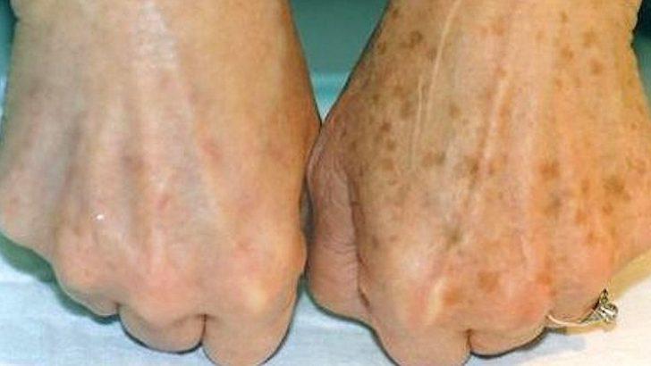 Ellerdeki Kahverengi Lekeler Nasıl Giderilir?