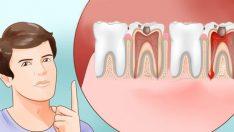 Dayanılmaz Diş Ağrısına Çözüm