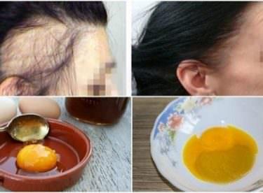 3 Malzemeyle Saç Dökülmesini Engelleyin