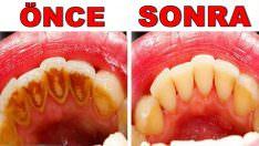 Diş Taşlarını Temizlemenin Doğal Yolları