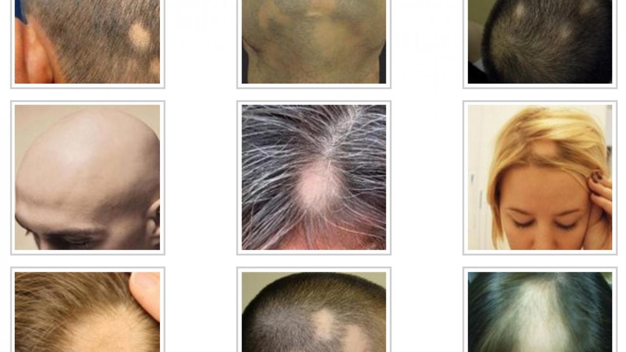 Saç Kıran Neden Olur? – Saç Kıran Nasıl Geçer?