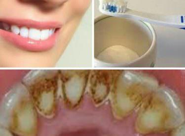 Dişteki Kahverengi Lekeler Nasıl Çıkar?
