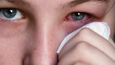 Göz Nezlesi Nedenleri ve Tedavisi